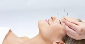 348_saude-acupuntura